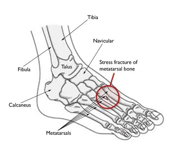 Picture for category Sports Ankle Injuries