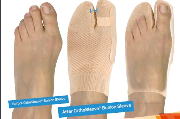 Picture of HV3 Bunion Bracing Sleeve (Bunion, Arthritis)